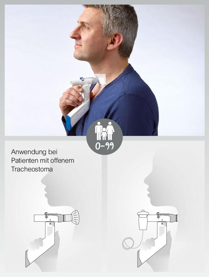 Anwendung des RC-Cornet® PLUS TRACHEO
